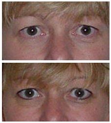 permanente make up ooglijn onder