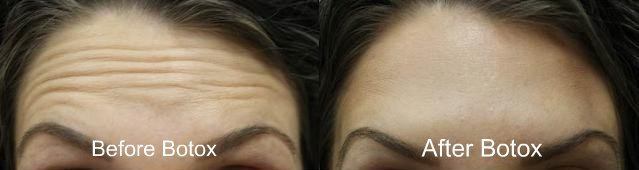 Botox Treatment at Texas Institute of Dermatology